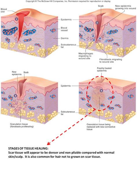 chapter 6 skin and the integumentary Chapter six integumentary system - free download as powerpoint presentation (ppt), pdf file (pdf), text file (txt) or view presentation slides online.